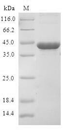 SDS-PAGE- Recombinant protein Human CDKN2D