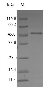 SDS-PAGE- Recombinant protein Human CETN3