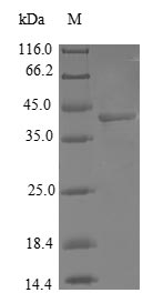 SDS-PAGE- Recombinant protein Human COX7A2L