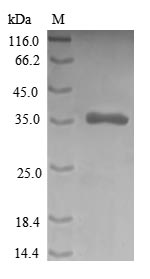 SDS-PAGE- Recombinant protein Human CRIP1