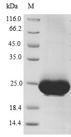 SDS-PAGE- Recombinant protein Human CXCR4