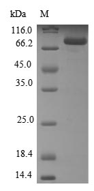 SDS-PAGE- Recombinant protein Human CYP21A2