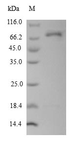 SDS-PAGE- Recombinant protein Human DCT