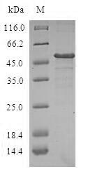 SDS-PAGE- Recombinant protein Human DCTD