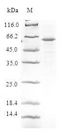 SDS-PAGE- Recombinant protein Human DEDD