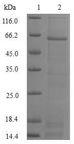 SDS-PAGE- Recombinant protein Human DFFA