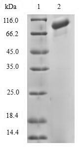 SDS-PAGE- Recombinant protein Human DGKA