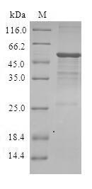 SDS-PAGE- Recombinant protein Human DIRAS3