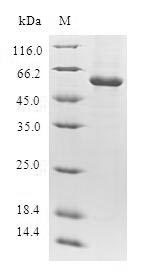 SDS-PAGE- Recombinant protein Human DTYMK