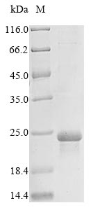 SDS-PAGE- Recombinant protein Human EGFR
