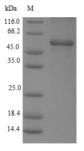 SDS-PAGE- Recombinant protein Human ESR2