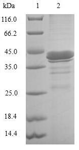 SDS-PAGE- Recombinant protein Human FABP6