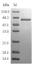 SDS-PAGE- Recombinant protein Human FBP1