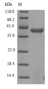 SDS-PAGE- Recombinant protein Human FGFR1