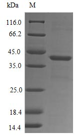 SDS-PAGE- Recombinant protein Human FPR1