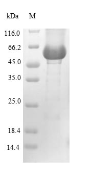 SDS-PAGE- Recombinant protein Human GBA