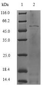 SDS-PAGE- Recombinant protein Human VDBP