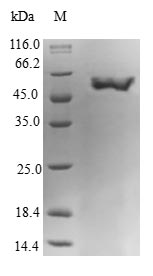 SDS-PAGE- Recombinant protein Human GNA15