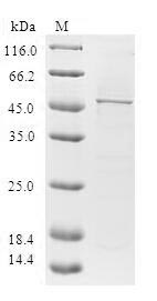 SDS-PAGE- Recombinant protein Human HAND2