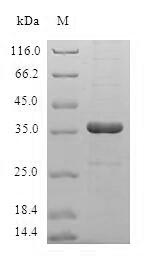 SDS-PAGE- Recombinant protein Human HBXIP