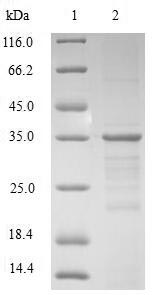 SDS-PAGE- Recombinant protein Human HMGN2