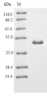 SDS-PAGE- Recombinant protein Mouse Jchain