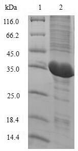 SDS-PAGE- Recombinant protein Macaca IL2