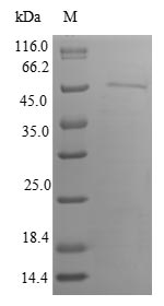 SDS-PAGE- Recombinant protein Human IP6K1