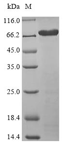 SDS-PAGE- Recombinant protein Human ISM1