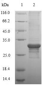 SDS-PAGE- Recombinant protein Human KCND1