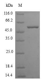 SDS-PAGE- Recombinant protein Human KHK