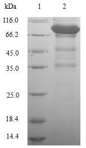 SDS-PAGE- Recombinant protein Human LAG3
