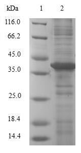 SDS-PAGE- Recombinant protein Human LGALS2