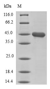 SDS-PAGE- Recombinant protein Human LMO4