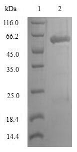 SDS-PAGE- Recombinant protein Human LSP1