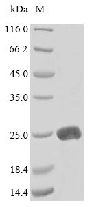 SDS-PAGE- Recombinant protein Mouse Lta