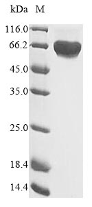 SDS-PAGE- Recombinant protein Human MET