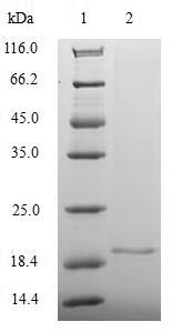 SDS-PAGE- Recombinant protein Human MKI67