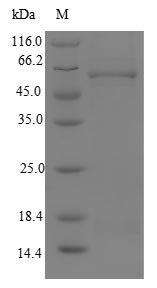 SDS-PAGE- Recombinant protein Human MLYCD