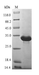 SDS-PAGE- Recombinant protein Human MT3