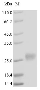SDS-PAGE- Recombinant protein Human MT4
