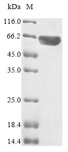 SDS-PAGE- Recombinant protein Human MYC