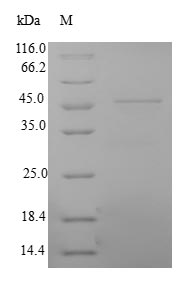 SDS-PAGE- Recombinant protein Human MYL3