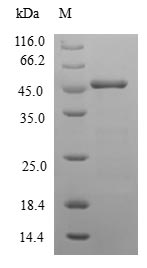 SDS-PAGE- Recombinant protein Human NCALD