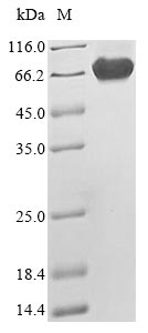 SDS-PAGE- Recombinant protein Human NF2