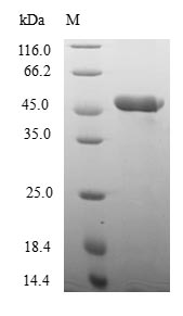 SDS-PAGE- Recombinant protein Human NFYB
