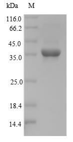 SDS-PAGE- Recombinant protein Mouse Nkx3-2