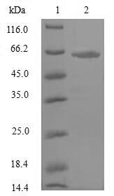 SDS-PAGE- Recombinant protein Rat Npr3