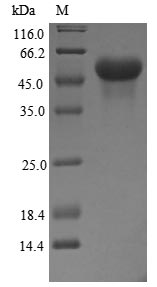 SDS-PAGE- Recombinant protein Human NR3C1