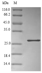 SDS-PAGE- Recombinant protein Human ORM2